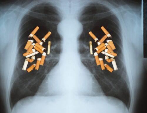 Românii pot afla online dacă plămânii lor prezintă simptome ale unei boli pulmonare -Ziua Mondială fără tutun-